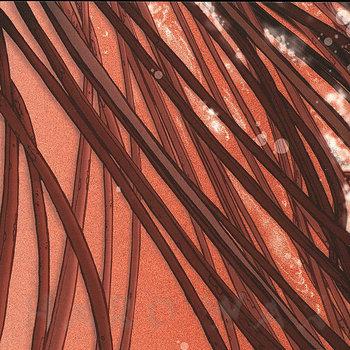 Cover art - Recloose: Cardiology